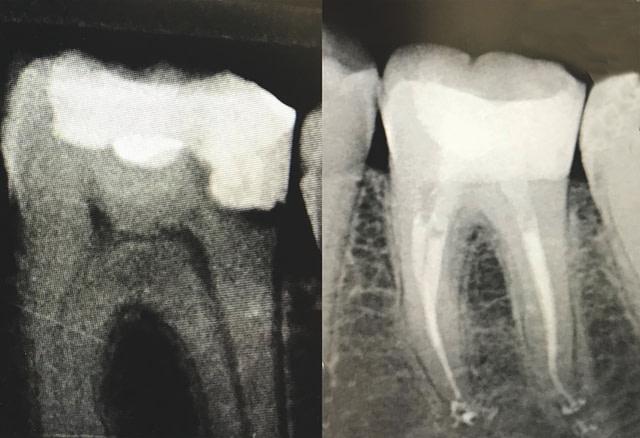 rontgen zuba