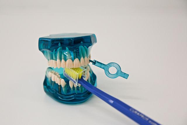 cistenie zubov
